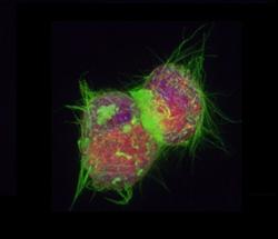 Stem Cells in Suspension
