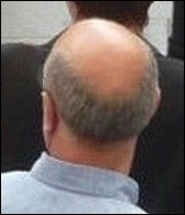 Man with male pattern baldness