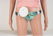 TenCar Launches Crowdfunding Initiative for the Choice Cap™ System, a Prosthetic Appliance for Active-lifestyle Colostomy and Ileostomy Patients.