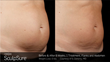 Holcomb – Kreithen Plastic Surgery and MedSpa Turns up the Heat on Stubborn Fat Using SculpSure®, the Breakthrough Body Contouring System