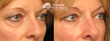 New Treatment Option: Eyelid Plastic Surgery Without the Surgery