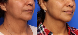 Infini Treatment Before and After