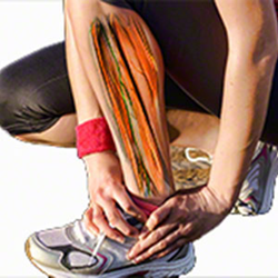 Running Injuries - Examination, Differential Diagnosis and Treatment Interventions
