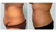smart lipo, tummy tuck, liposuction, myshape lipo, trevor schmidt pa-c