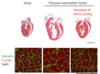 Okayama University research: Protein for preventing heart failure