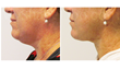 smart lipo, liposuction, trevor schmidt pa-c, myshape lipo, chin liposuction
