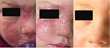 Most Common Summertime Injuries and a Solution for Scarring