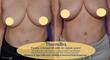 Breast Lift With No Visible Scars Introduced by New Jersey Plastic Surgeon Dr. Barry DiBernardo