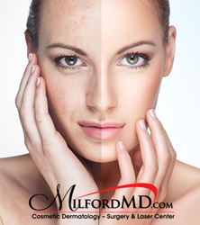 Fractional lasers are one among many treatments offered at MilfordMD to treat sun spots.