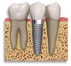 Powell Ohio Family Dentists educates patients on benefits of implants