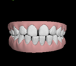 Animation Video Teeth Movement for Invisalign Treatment