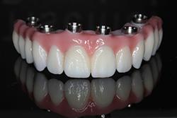 Full Arch Dental Implant Prettau Zirconia Bridge Teeth Tomorrow