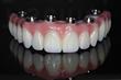 Top Implant Practice Brings Teeth Tomorrow® to Westchester, Putnam and Danbury Patients