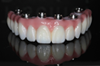 Top Full-Arch Dental Implant Bridge Delivers 100% Success Rate Over 5 Year Study Presented to ICOI 2017 Winter Symposium