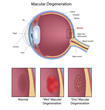 Macular Degeneration affects the central area of the retina responsible for sharp central vision needed for reading and seeing details.