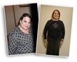 Many Benefits of Weight Loss Surgery Highlighted by Possible Link between Obesity and Brain Aging, Notes Beverly Hills Physicians