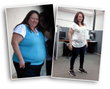 Weight Loss Surgery Success Story Highlights Both the Challenges and the Potential for Permanent Success, notes Beverly Hills Physicians