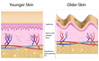 As people age, they lose the elasticity in their skin, causing it to sag.