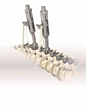 OrthoPediatrics Corp. Launches New BandLoc System