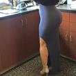 Brazilian Butt Lift Now Available In Santa Rosa