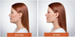 Potential New Uses for Kybella Underlines the Continuing Demand for Leading Edge Cosmetic Procedures, notes Beverly Hills Physicians
