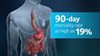 Current Esophagectomy Risks