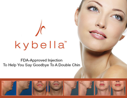 Kybella Bedford, NY fat loss