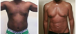 "Male Liposuction on the Rise, ""Mr. Grand"" Tells his Story on FOX 5 More Show"