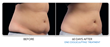 Patients Give Feedback on Coolsculpting in Toronto: The Next Big Thing in Permanent Fat Loss