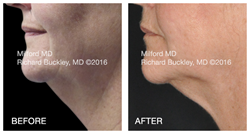 CoolSculpting treatment on a double chin at MilfordMD.