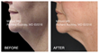 "MilfordMD Announces Its October ""Necktober"" CoolSculpting Special"