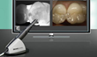 A Brilliant New Approach to Caries Detection is Now Available at Highlands Dentistry
