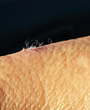 Scientific Study Sheds Light on Morgellons as an Infectious Disease