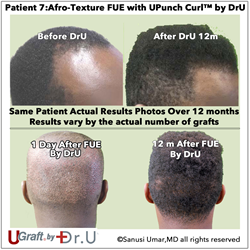 UPunch Curl by Dr. Sanusi Umar Opens FUE to Patients of African Descent