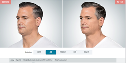 Men are taking advantage of Kybella for a refreshed, younger look.