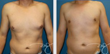 Patients Should Clearly Understand the Uses of Liposuction and Body Contouring Procedures, Says Dr. J