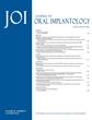 Less Pain, More Gain: Simple Procedure Makes Implant Patients Smile
