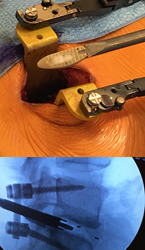 PLIFT Implant with Bone Graft and Fluoroscopy of Implant and Inserter