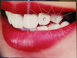Dental Implants San Francisco Bay Area