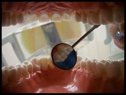 San Francisco Oral Surgeon