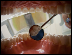 Wisdom Teeth Extraction San Francisco Bay Area