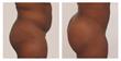 myshape lipo, liposuction, trevor schmidt pa-c, Brazilian butt lift, fat transfer butt