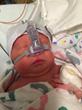 Safety Training Seminars Now Teaches NRP (Neonatal Resuscitation Program) Courses by the American Academy of Pediatrics in the San Francisco Bay Area and Sacramento, CA