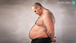 Obesity & Aggressive Prostate Cancer In White Men - Dr. David Samadi Investigates the Connection