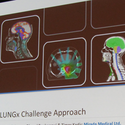 Results from the PROSTATEx Challenge will be presented at SPIE Medical Imaging 2017, following on the LUNGx Challenge of 2015 (above).