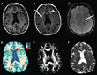 RSNA: Heart Disease Protein Linked to Brain Damage