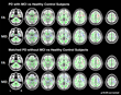 RSNA: Imaging Links Structural Brain Changes and Cognitive Decline in Parkinson's