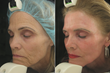 Sublime MD Surpasses 5,000 CO2 Laser Resurfacing Treatments Performed