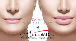 Lip Augmentation by Dr. Buckley at MilfordMD Using Juvederm Volbella XC