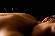 Acupuncture Services Provided in a Specialty Provider Network Setting Exceed National Benchmarks for Patient Satisfaction, Quality and Treatment Success